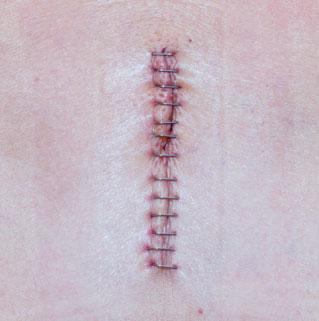 Blizny po zabiegach chirurgicznych - leczenie
